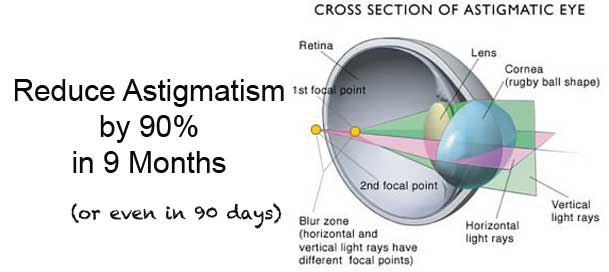 Reduce Astigmatism by 90% in 9 Months